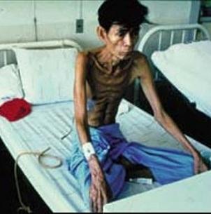 Tìm hiểu về bệnh lao và cách điều trị, tim hieu ve benh lao va cach dieu tri